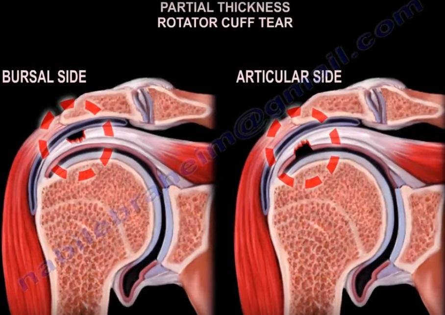 Evaluar la capacidad de reparación del manguito rotador desde la reparación hasta la reconstrucción